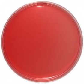 EMB (Eosin Methylene Blue) Agar 90 Mm